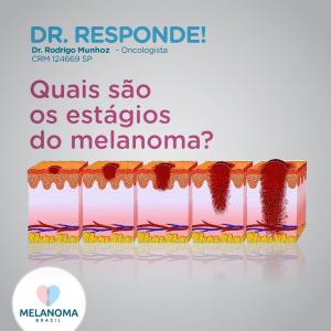 Quais são os estágios do melanoma?