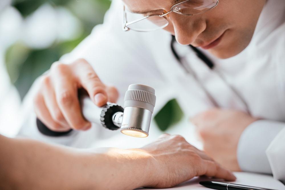 Nova técnica pode ajudar a prever quais pacientes de melanoma têm mais chance de recidiva