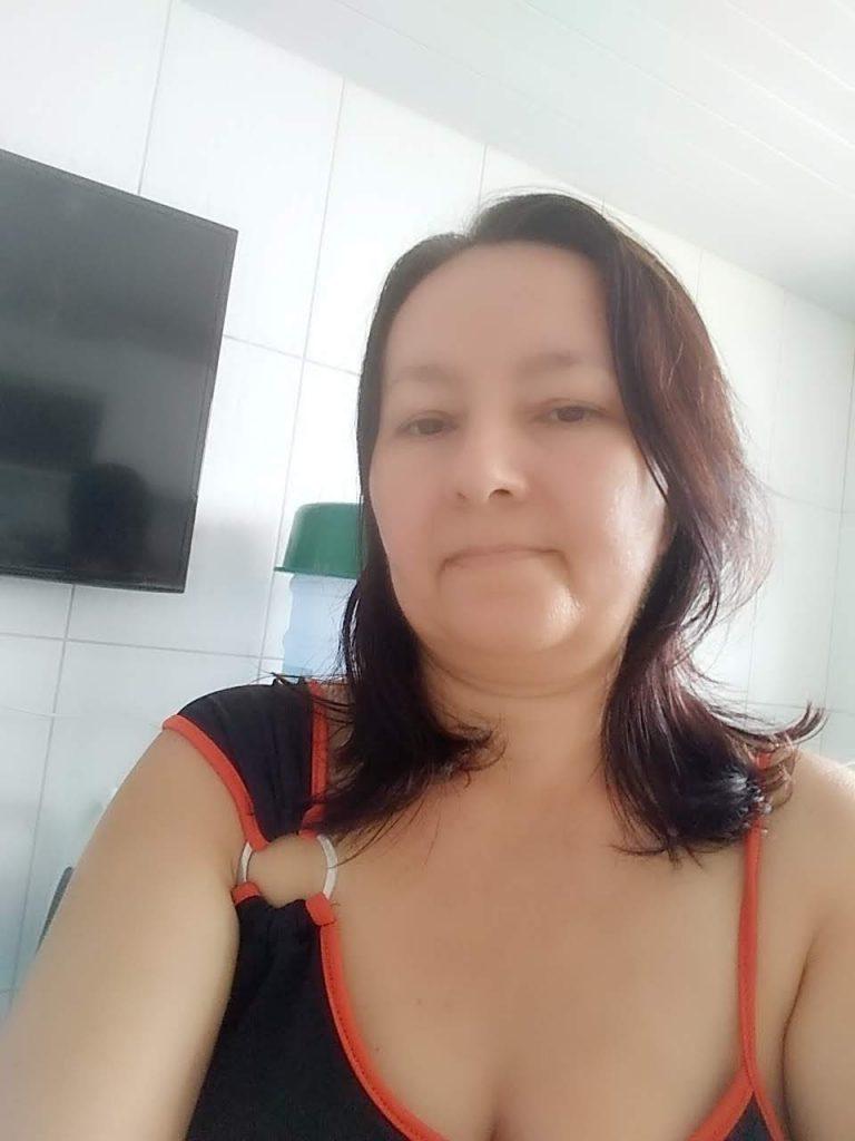 Fotografia de Maria Betânia Bezerra, paciente de melanoma vulvar