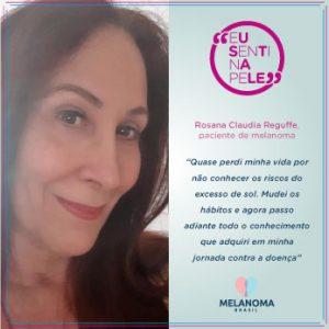 Fotografia da Artesã Rosana Reguffe, que tomama sol sem nenhuma proteçãoe, após tratar um melanoma, mudou totalmente de hábitos.