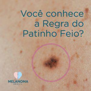 Regra do patinho feio ajuda a identificar pintas suspeitas de melanoma.