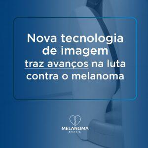 Métodos inovadores de diagnóstico do melanoma trazem avanço na luta contra a doença